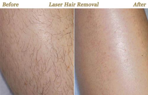1 4 - نظرات کارشناس زیبان در خصوص مزایای لیزر موهای زائد