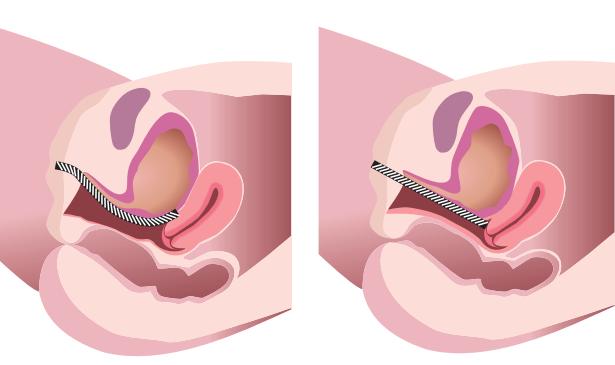 Screenshot 2017 08 07 15.06.25 - لیزر غیر جراحی FotonaSmooth برای سلامت واژن (بخش دوم)