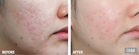 acne1 - درمان جوش و جای جوش با پی آر پی (PRP)