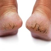 cracked feet resized 600 180x180 - با ترک دار ترین حالت پاها چه کنم؟!