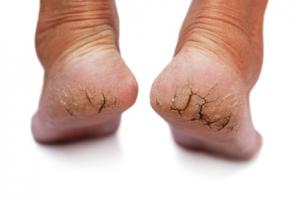 cracked feet resized 600 300x200 - با ترک دار ترین حالت پاها چه کنم؟!