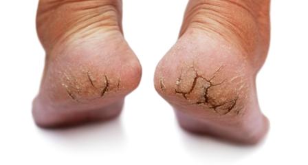 cracked feet resized 600 448x240 - با ترک دار ترین حالت پاها چه کنم؟!