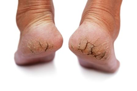 cracked feet resized 600 - با ترک دار ترین حالت پاها چه کنم؟!