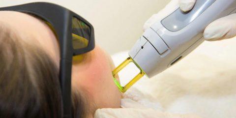 05 480x240 - معرفی مرکز تخصصی لیزر موهای زائد شعبه بوشهر