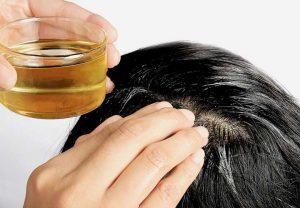 Final 35 300x208 - پاسخ به پرسش های شما در مورد علل رایج ریزش مو