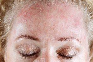 اثرات کم کاری تیروئید بر پوست