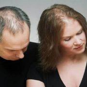 مهمترین علل ریزش مو