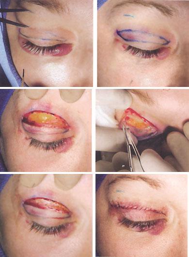 blepharoplasty upper - عمل بلفاروپلاستی یا زیبایی پلک ، درمان افتادگی پلک و عوارض آن