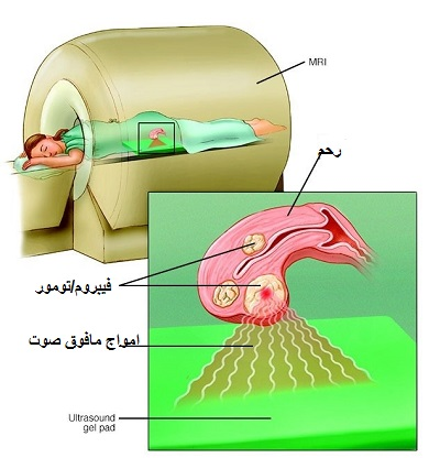 fibroid hifu therapy1 - هشدار: رشد افزایشی فیبروم رحمی در ایران، درمان با هایفو