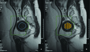 hifu MRI 300x174 - هشدار: رشد افزایشی فیبروم رحمی در ایران، درمان با هایفو