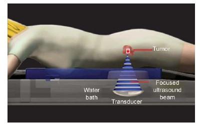 water bath hifu - هشدار: رشد افزایشی فیبروم رحمی در ایران، درمان با هایفو