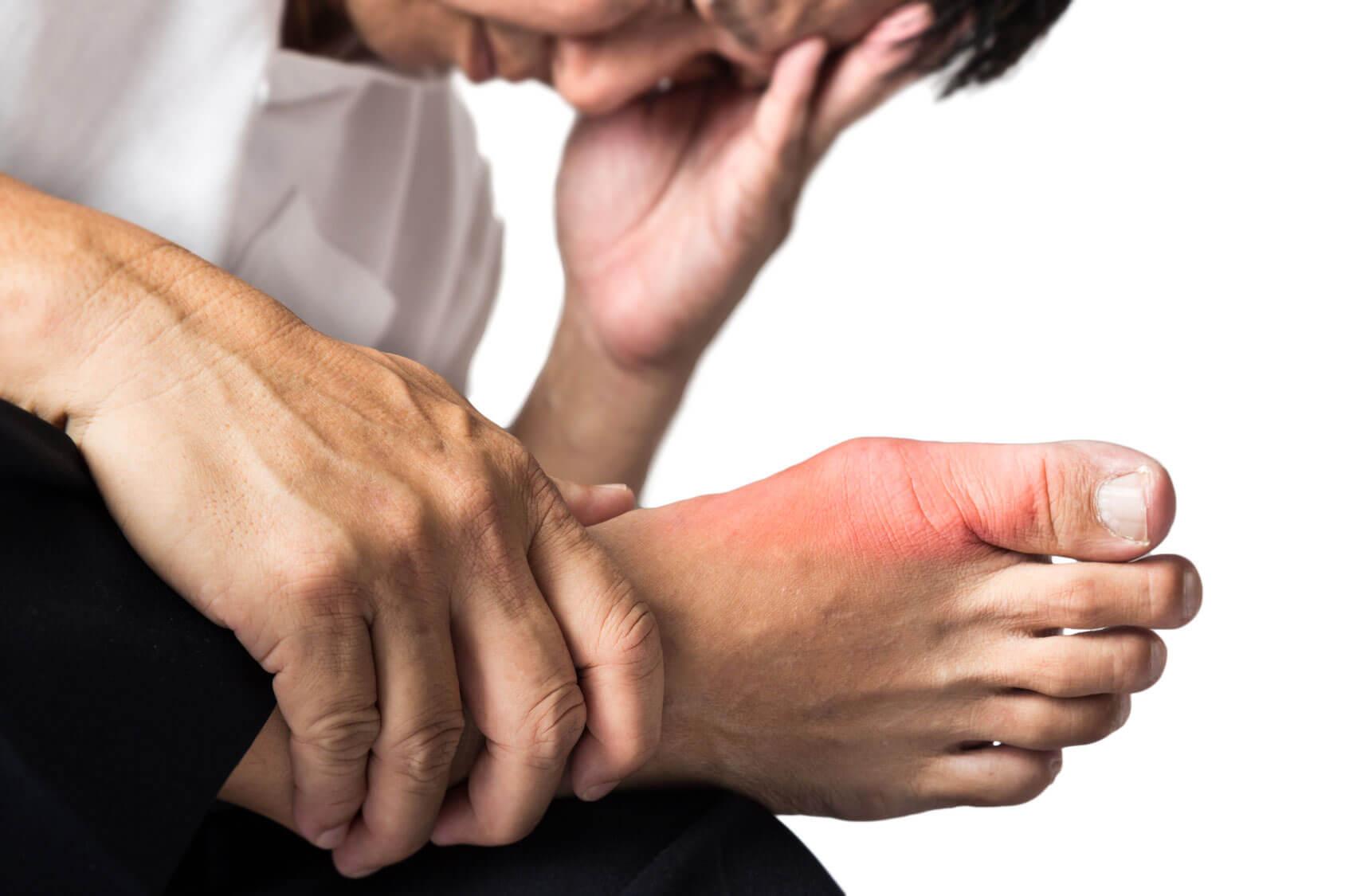 بیماری نقرس چیست؟ درمان آن را میدانید؟ - بیماری نقرس و راه های درمان آن را بشناسید!
