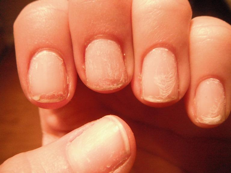 بیماری های شایع ناخن - بیماری های ناخن را بهتر بشناسیم