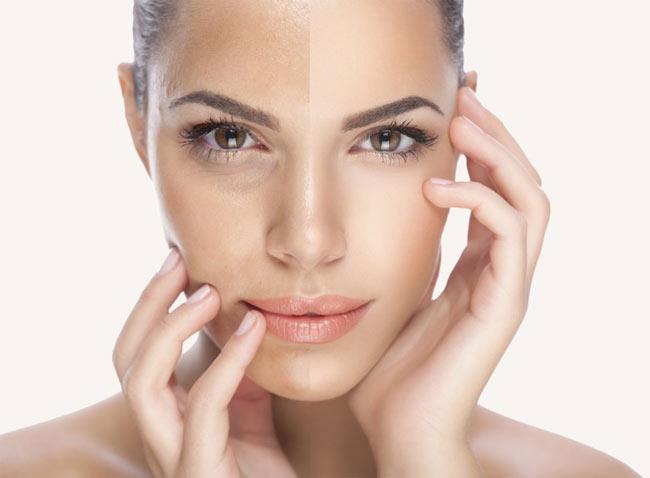 جوانسازی پوست با لیزر - جوانسازی پوست با لیزر