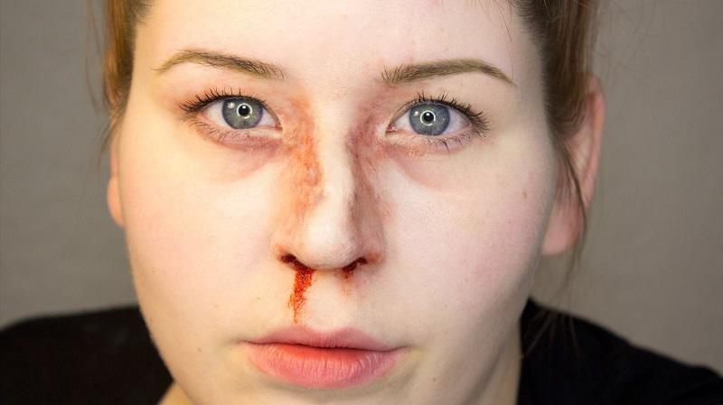 شکستگی بینی - شکستگی استخوان بینی و را ه های درمان آن !