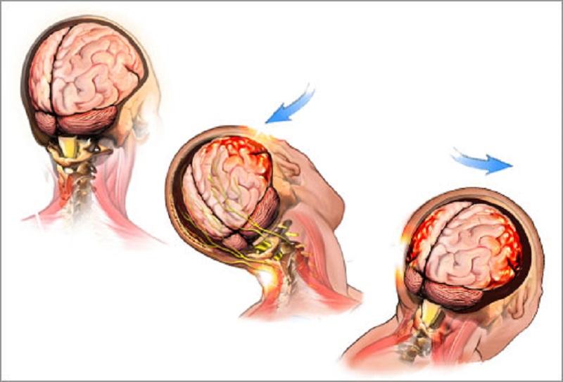 ضربه مغزی - ضربه مغزی و علایم آن را بشناسید!