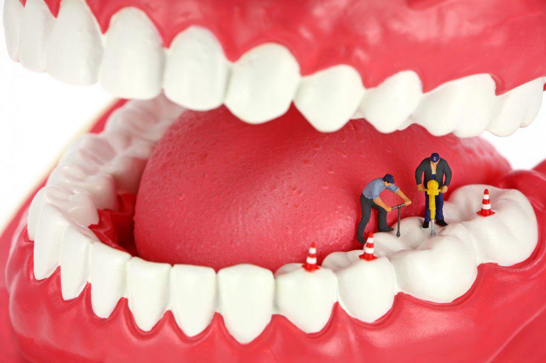 عصب کشی درمان ریشه دندان چیست - آسیب دیدگی مغز دندان را بهتر بشناسید!