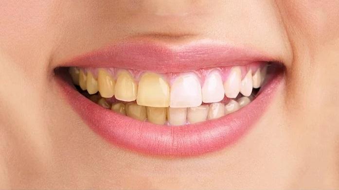 علت زردی دندان ها - علت زردی دندان چیست؟راه های درمان کدامند!