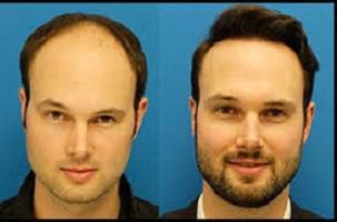 کاشت مو 7 - کاشت مو - 10 مورد از عوارض جانبی پیوند مو که ممکن است آن را ندانید!