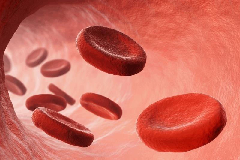 کم خونی 1 - عوامل ایجاد کننده کم خونی ناشی از فقر آهن