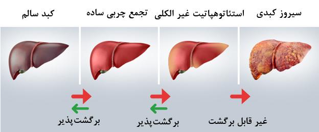 1 3 - کبد چرب از علائم و عوارض تا تشخیص و درمان آن!