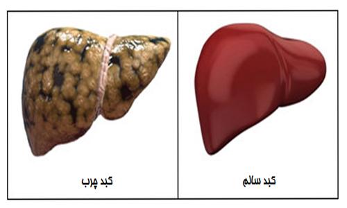 2 - کبد چرب از علائم و عوارض تا تشخیص و درمان آن!