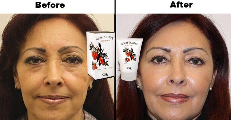 Goji Cream results - بررسی کرم گوجی هندلز گاردن، معجزه ای در ترمیم و بازسازی پوست صورت!!!