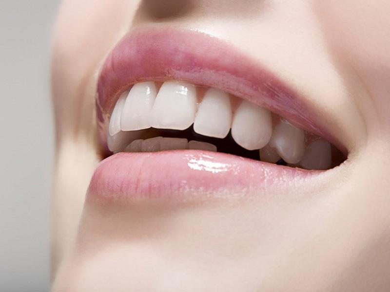 cosmetic dentistry - لمینیت دندان: سلامت دندان ها را فدای زیبایی نکنید !