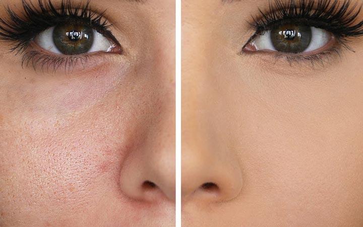 pores - 3 عادت اشتباه که باعث بسته شدن منافذ پوست می شود!