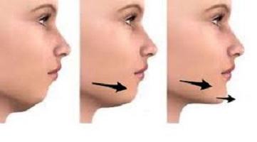 عمل چانه - افزایش حجم چانه- نقش عمل افزایش حجم چانه در زیبایی صورت چیست ؟