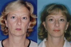 لیفت صورت - لیفت صورت -  آیا می توان با جراحی لیفت صورت جوانتر شد؟