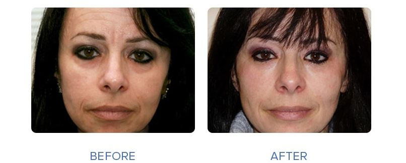 چشم - رفع گودی زیر چشم - رفع گودی زیر چشم با عمل جراحی و بدون عمل جراحی .