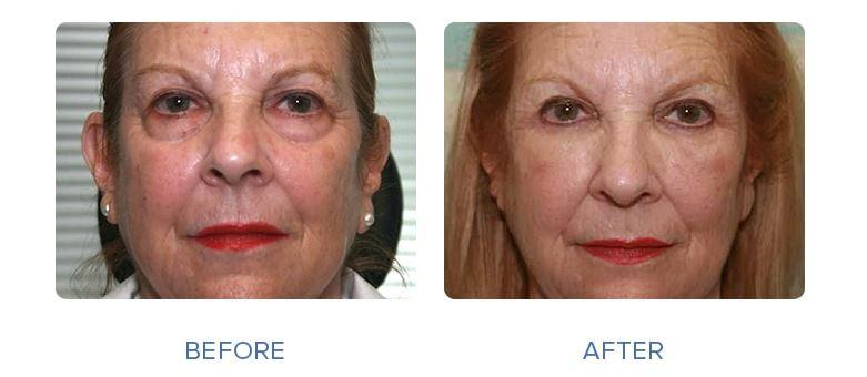 2 - رفع گودی زیر چشم - رفع گودی زیر چشم با عمل جراحی و بدون عمل جراحی .