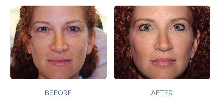 3 - رفع گودی زیر چشم - رفع گودی زیر چشم با عمل جراحی و بدون عمل جراحی .
