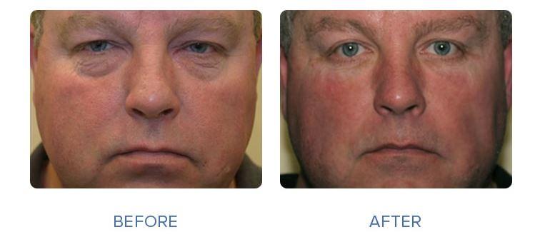 4 - رفع گودی زیر چشم - رفع گودی زیر چشم با عمل جراحی و بدون عمل جراحی .