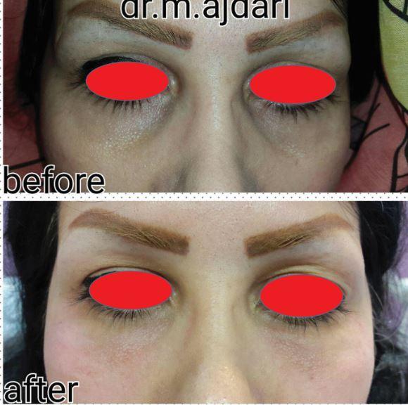 10011 - رفع گودی زیر چشم - رفع گودی زیر چشم با عمل جراحی و بدون عمل جراحی .