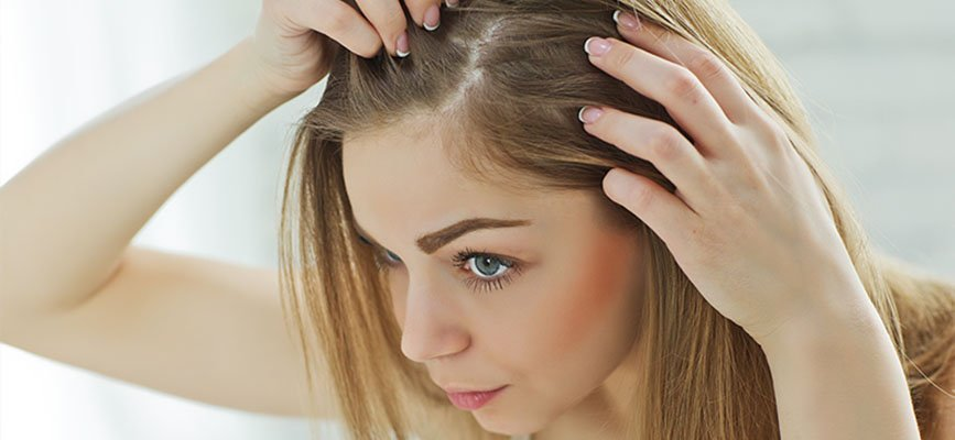 hair loss during breastfeeding thegem blog default - آیا کیست تخمدان باعث ریزش مو می شود؟