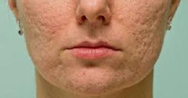 اسکار - اسکار - آیا برای منافذ باز پوست یا همان اسکار درمان قطعی وجود دارد ؟