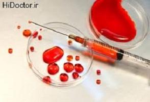 درمان لوکمی 2 - لوکمی - روش برخورد با بیماری لوکمی چگونه است ؟