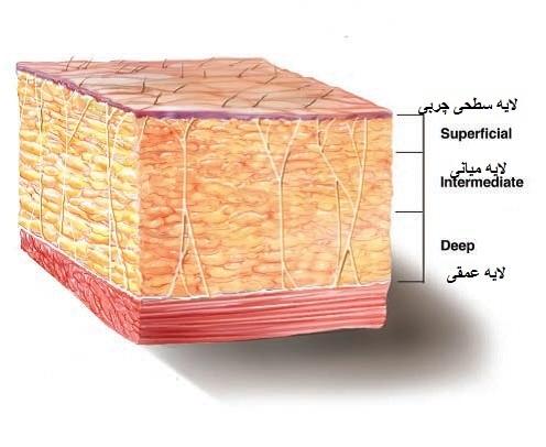 چربی سه لایه - باورتون میشه از فشار آب میشه هم سلول بنیادی چربی تولید کرد و هم خوش اندام شد؛؟ چه طوری؟ متن زیر رو بخونین!