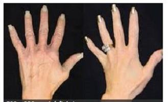 ترمیم دست با تزریق چربی - تزریق چربی - آیا تزریق چربی به زیباتر شدن چهره شما کمک می کند ؟