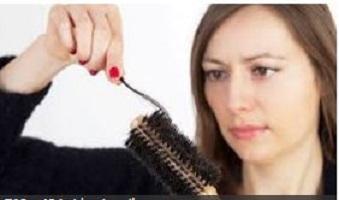 ریزش مو 4 - ریزش مو - 20 دلیل مهم ریزش مو که شاید شما ندانید ؟