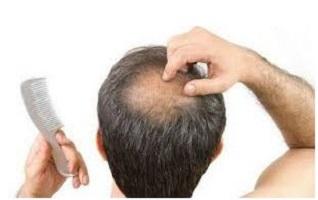 مو - ریزش مو - 20 دلیل مهم ریزش مو که شاید شما ندانید ؟