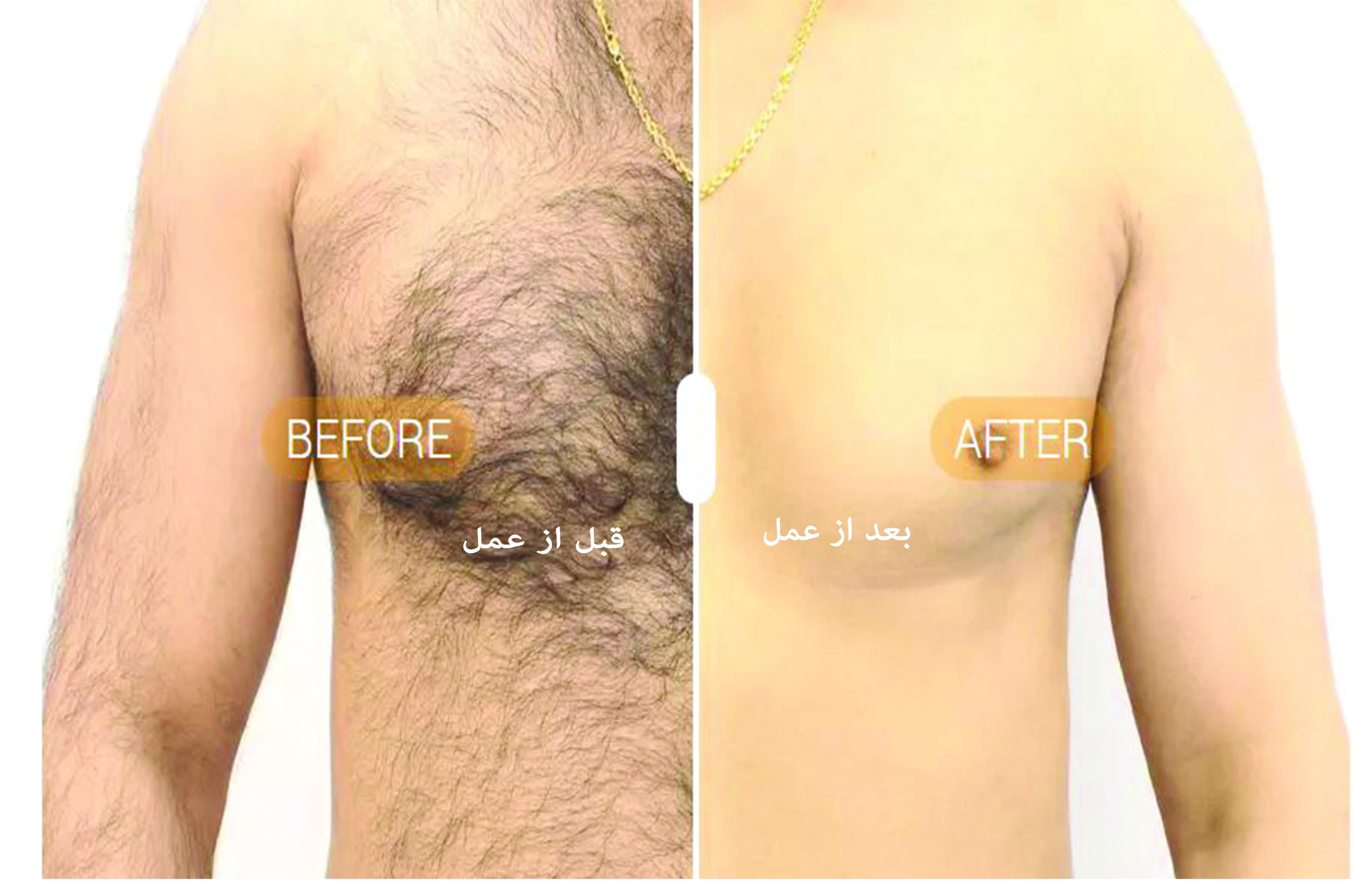 لیزر موهای زائد بدن مردان