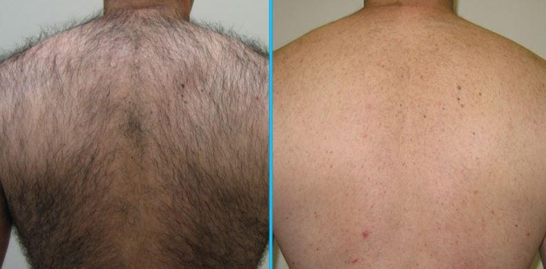 %D9%84%DB%8C%D8%B2%D8%B1 %D9%85%D8%B1%D8%AF 2 - لیزر موهای زائد بدن مردان- چرا لیزر برای مردان از تیغ زدن بهتر است؟