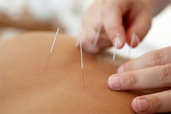 acupuncture for lifting hip2 - فرم دهی باسن با طب سوزنی و مشاوره رایگان چاقی و لاغری باسن در مرکز تخصصی