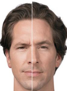 125 222x300 - بوتاکس صورت مردان   تزریق بوتاکس خط اخم   بوتاکس پیشانی