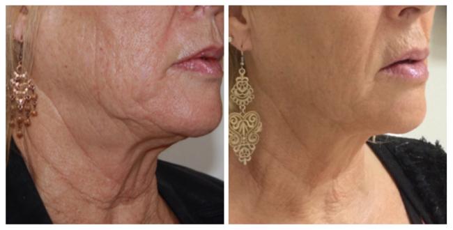 3d skinmed - مزایای جوانسازی و لیفت صورت و گردن با هایفو | عوارض هایفو