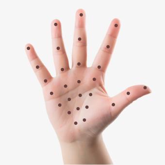 41 - تزریق بوتاکس کف دست برای درمان تعریق بیش از حد!!