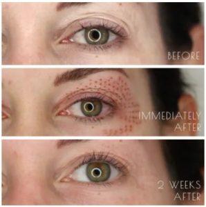 plasma pen eye1 298x300 - فرم دهی بینی بدون جراحی با پلاسما جت | دکتر خوب برای پلاسما جت بینی